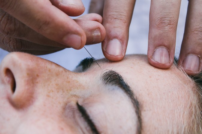 Acupuncture for Sinus Relief