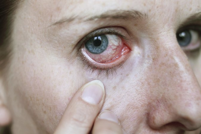 What Are the Causes of Puffy Morning Eyes?