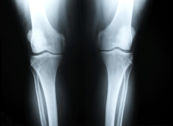 What Are the Causes of Knee Pain in Children?