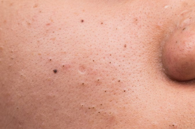 What Is the Difference Between Clogged Pores & Acne?