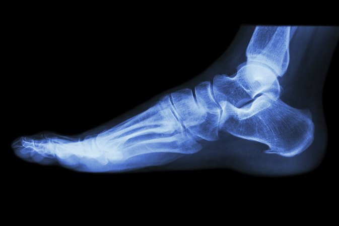 Information About Burning Feet Syndrome