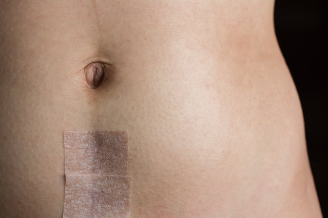How to Remove Surgical Scars