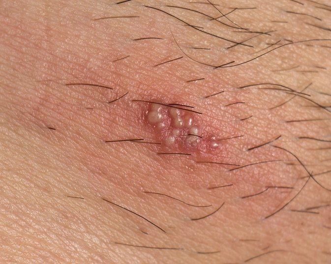 Treatment For Shingles Blisters Livestrong Com