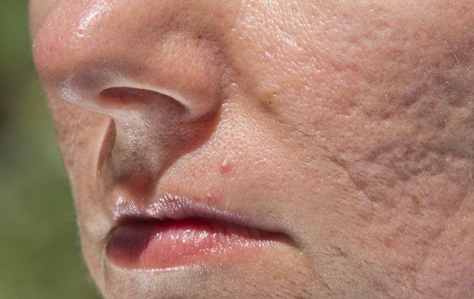 What Are the Dangers of Popping Pimples?
