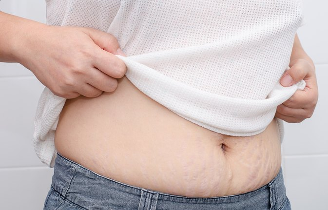 How to Know If a Stretch Mark Is Infected