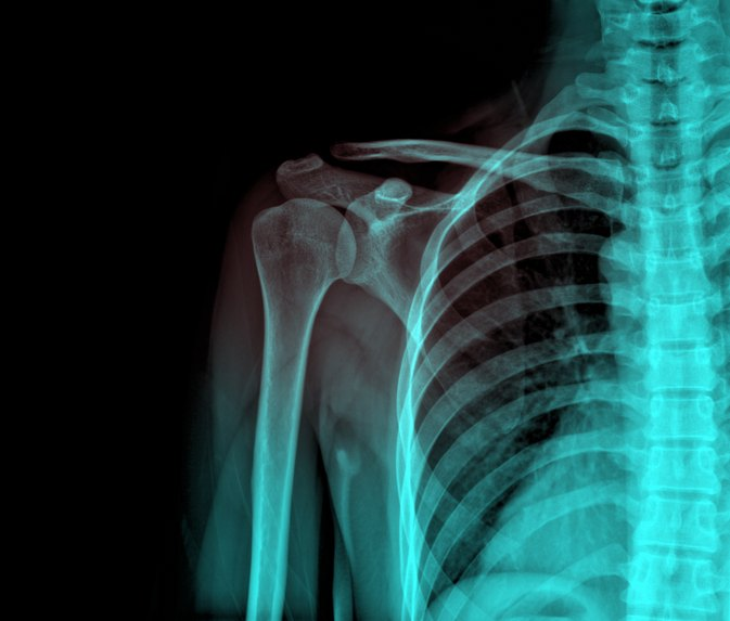 Complications From Shoulder Arthroscopy