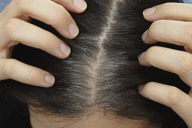 What Causes White Hair at a Young Age?