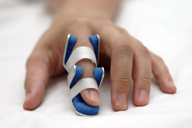 Treatment for a Sprained Finger