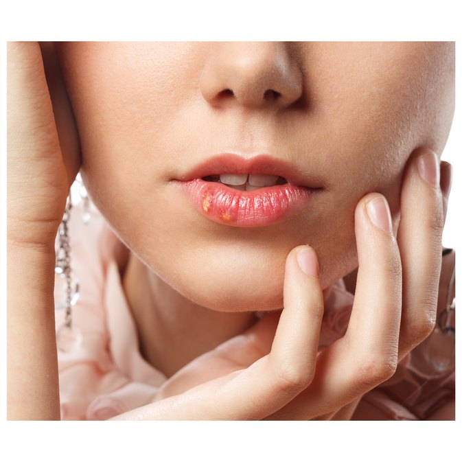 How to Get Rid of a Fever Blister on a Lip