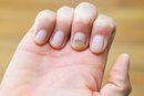 How Do I Get Yellow Stains Out of My Nails?