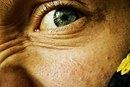 Treatment for Acne Pock Mark Scars