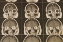 What Are the Causes of Brain Atrophy?