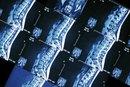 Side Effects of a Bone Scan