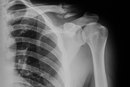 What Exercises Can I Do After a Broken Clavicle Bone?