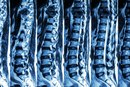 retrolisthesis and traction Cervical spine conditions only when severe—and accompanied by a bulging disc or spondylosis—retrolisthesis occasionally can result in pinched or irritated.