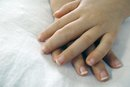 Signs & Symptoms of Rheumatoid Arthritis in Children