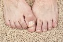 Would a Vitamin Deficiency Cause Split Toenails?