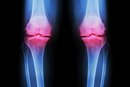 Joint Pain and a Vitamin Deficiency