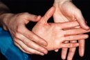 Exercises for a Hyperextended Finger