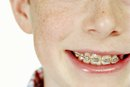 Pros & Cons of Braces