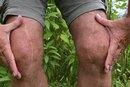 Keloid Swelling