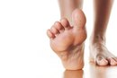 Herbs That Shrink Bunions