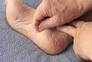 Permanent Callus Removal