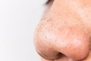Medical Blackhead Treatments