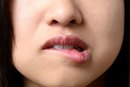 How to Make a Cold Sore Pop Fast