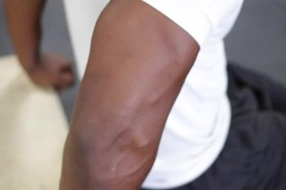 Tricep Tendon Pops When Exercising Livestrong Com