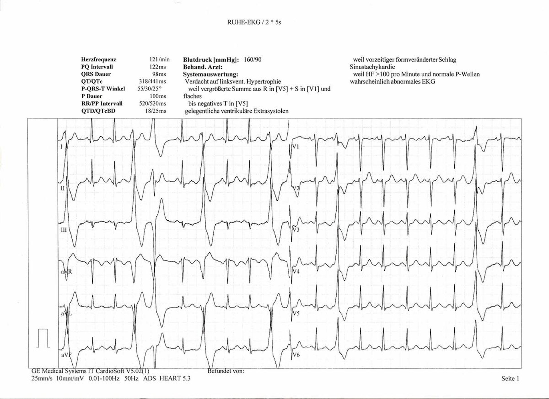 How to read an abnormal ekg livestrong ccuart Gallery