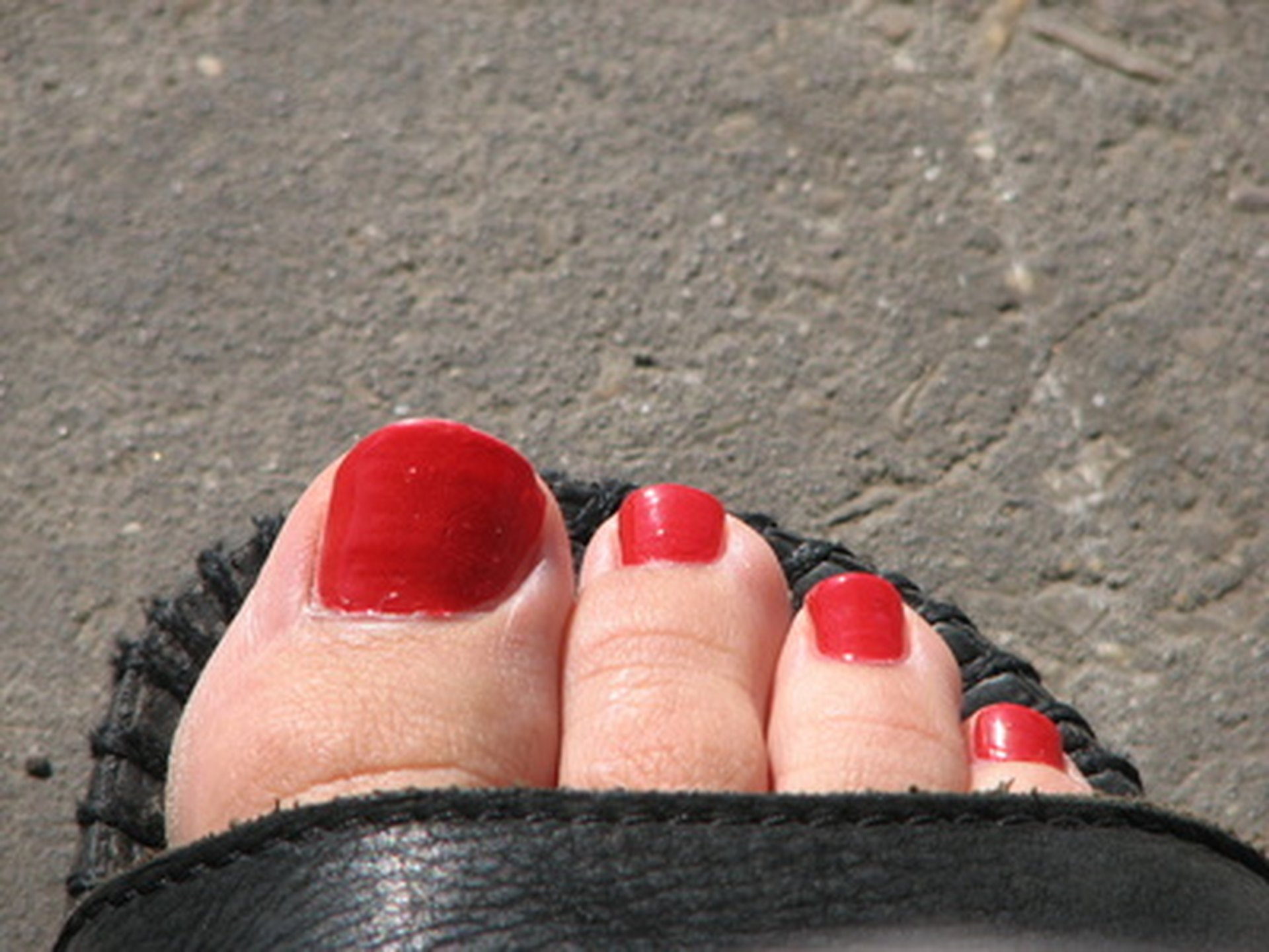 Why Do Toe Nails Turn Yellow? | LIVESTRONG.COM