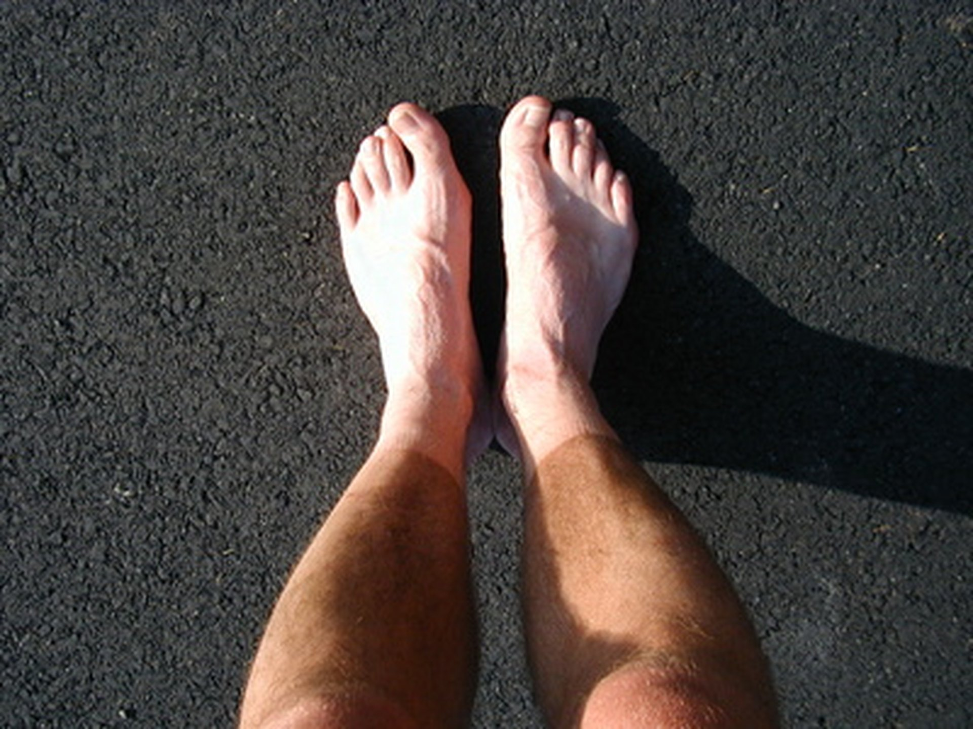 Hyperhidrosis of the feet - causes and treatment in children and adults