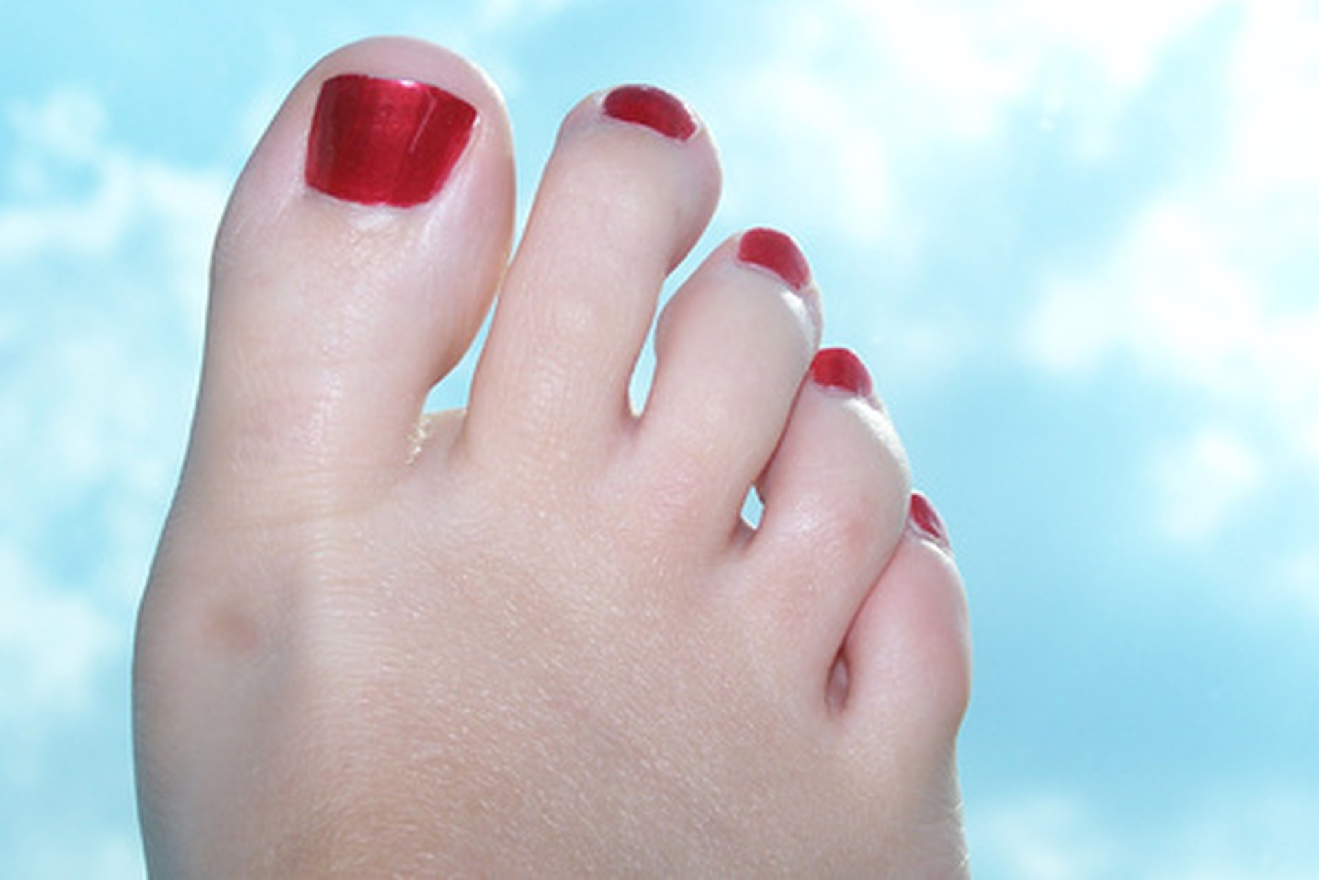 Numbness in the Tip of the Big Toe | LIVESTRONG.COM