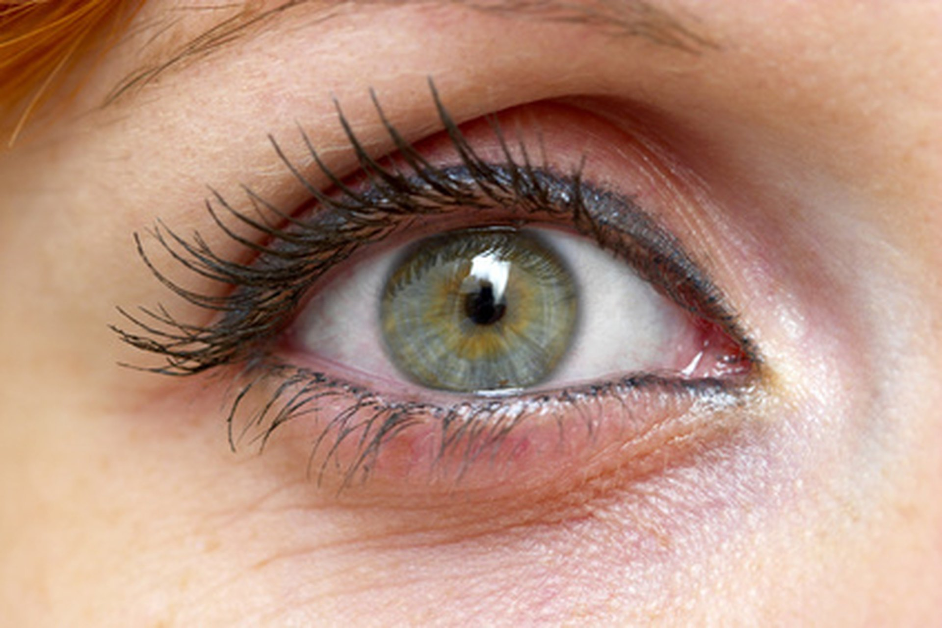 Causes Of Green Mucus In The Eye Livestrong