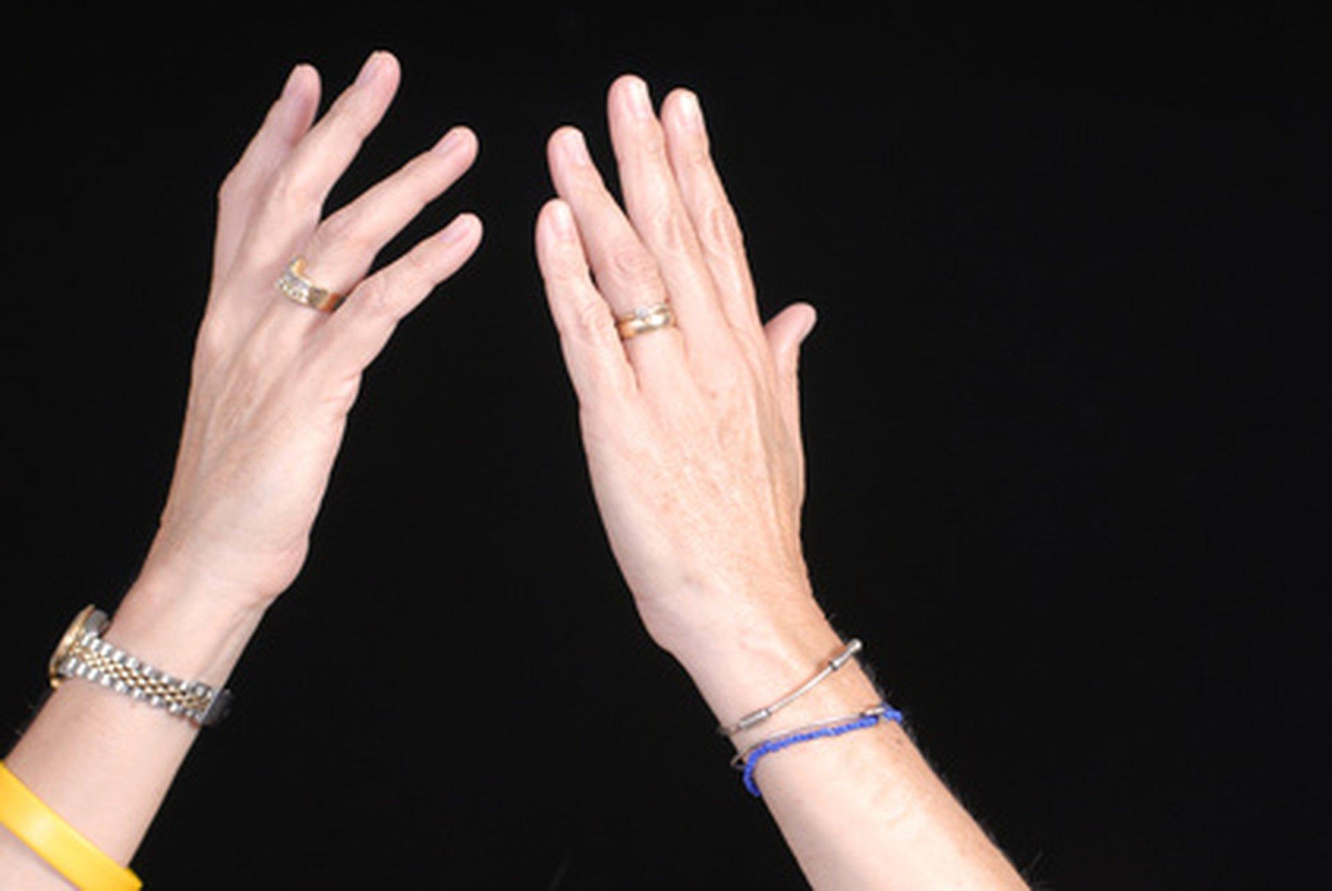 Pregnancy & Numbness in Fingers   LIVESTRONG.COM