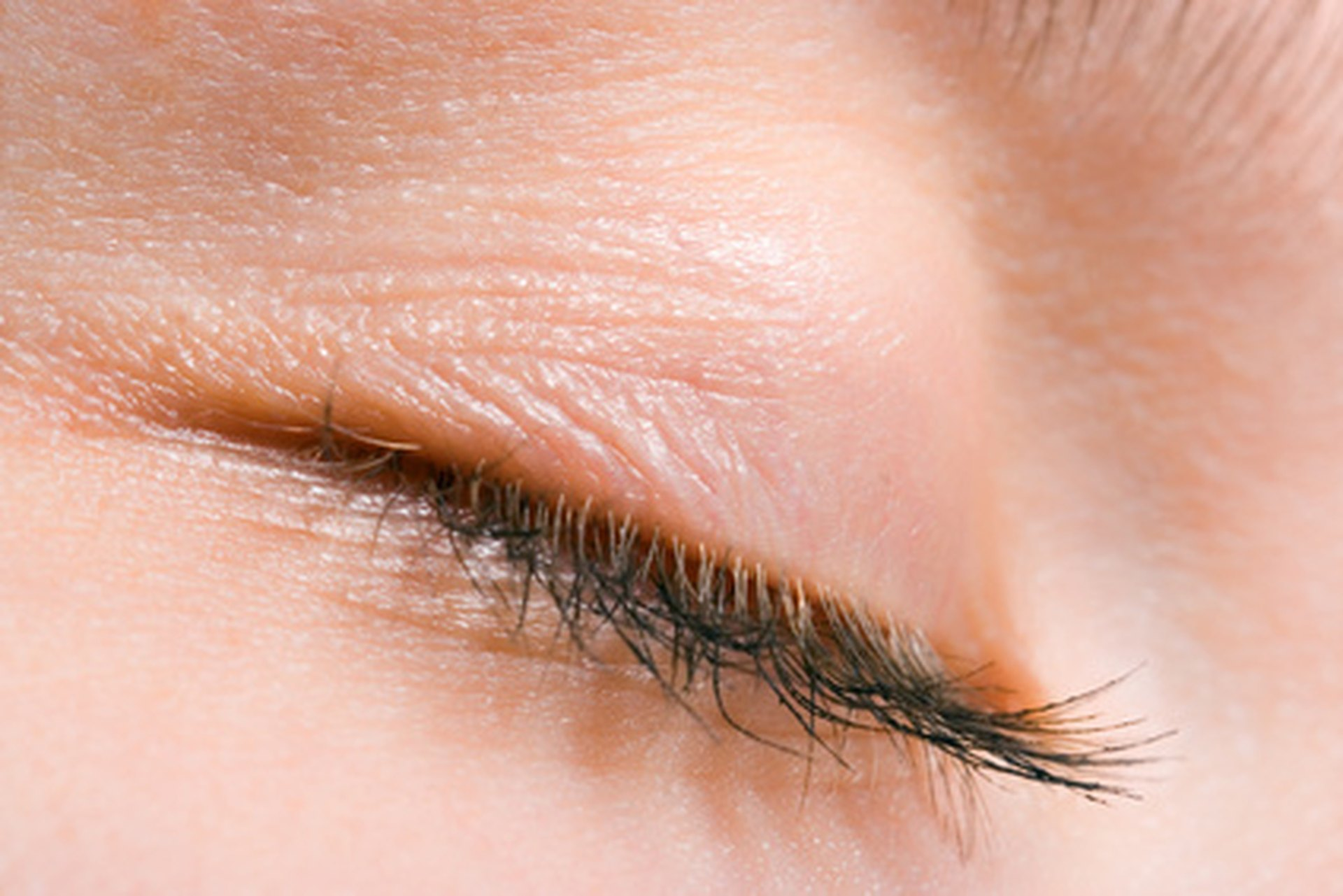 What Are The Causes Of Thinning Lashes Livestrong