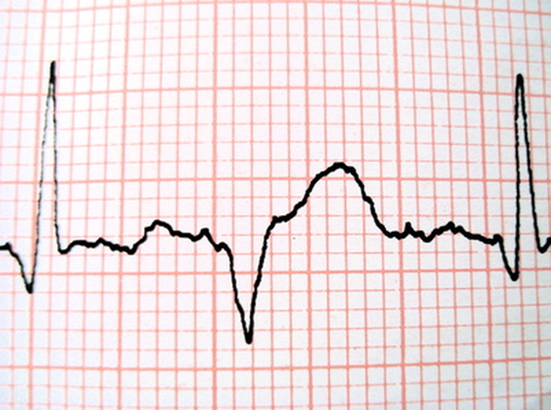 A Heart Rate During A Heart Attack Livestrong