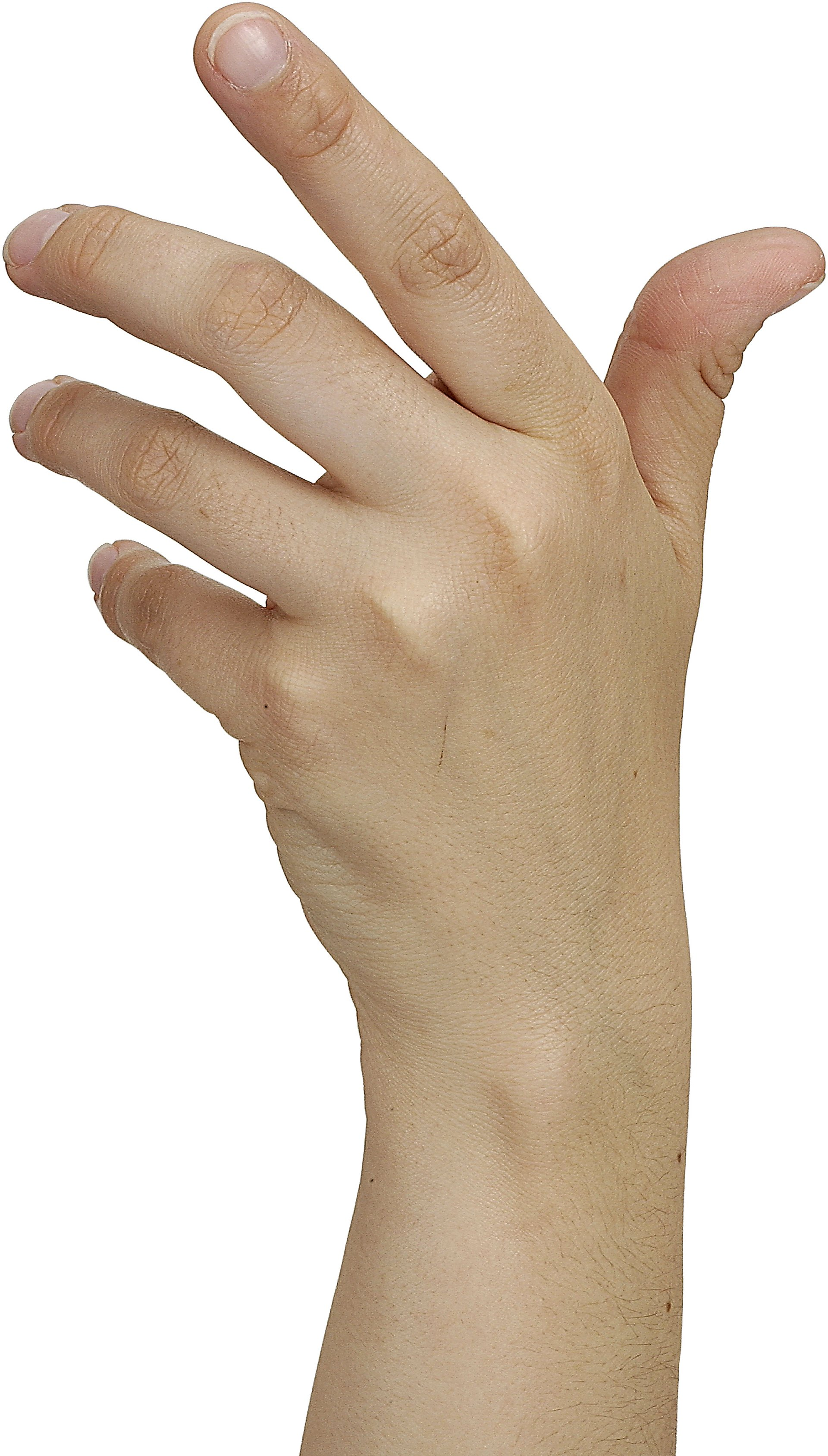 From what are the veins in the hands of the guy visible