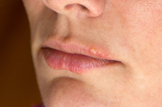 6. Blisters at the Corners of the Mouth