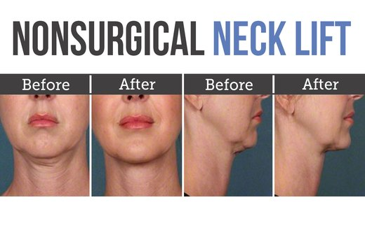 10. Double Chin Removal