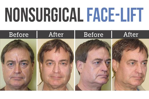 1. Nonsurgical Face-Lift